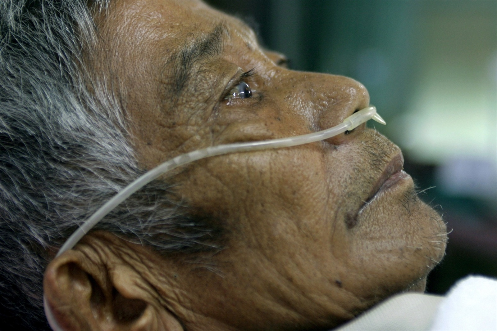 Khun Duong Panyaraew lies on a hospital bed in Mae Moh district. He has been diagnosed with Chronic Obstructive Pulmonary Disease. Environmental activists and villagers in the Mae Moh area believe that emissions from  the Mae Moh power plant are the principal cause of respiratory disease in this area. An abnormal number of villagers in vicinity of the power plant are dying of respiratory related illnesses. Mae Moh district in northern Thailand's Lampang province is home to Southeast Asia's largest lignite fired power generating facility. Villagers in the area have long complained that the plant, which supplies north and northeast Thailand with power, is contaminating the surrounding area and poses a hazard to their health as well as damaging agricultural land.  The Mae Moh Power Plant, as it is known, began operations about 30 years ago and, despite being dogged by accusations of excessive pollution and evidence that locals are suffering respiratory problems as a result of burn-off from the plant, has continued to expand production.  Environmental activists in Thailand and elsewhere see the plant as an example of unclean power technology that should not be repeated in other countries. Proponents of coal and lignite plants say it offers cost effective energy with relatively little impact on the environment.